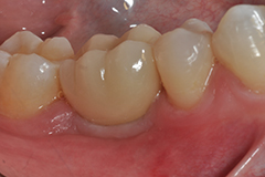 mark waring dds implant with permenent crown DSC 1077